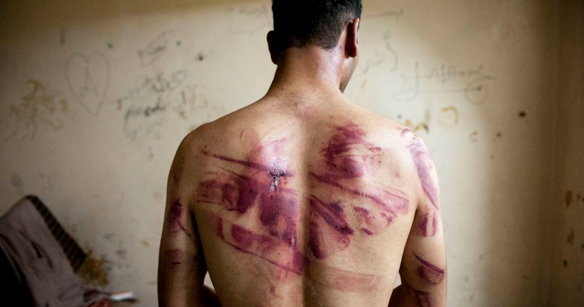 Tens Of Thousands In Syria Are Being Tortured And  Killed In Detention