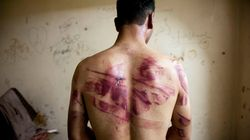 Tens Of Thousands In Syria Are Being Tortured And Killed In