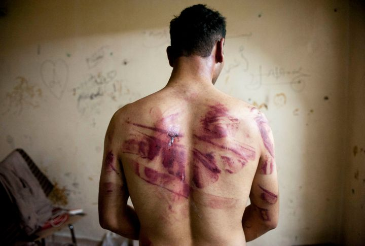 A Syrian man shows marks of torture on his back, after he was released from regime forces, in Aleppo in August 2012.