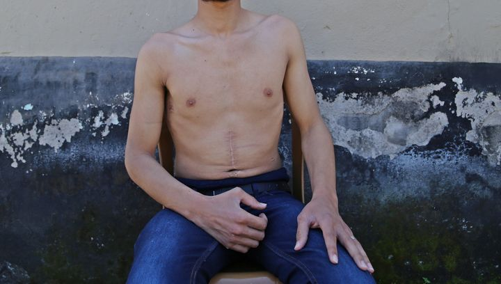 Hasan Ahmed, who was imprisoned for six months in Hama, Syria, then fled to Turkey.