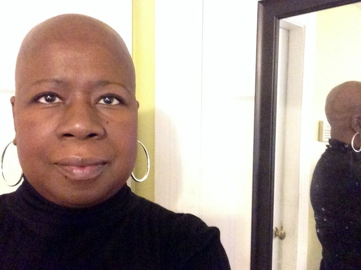What Its Like To Lose Your Natural Hair To Chemotherapy Huffpost