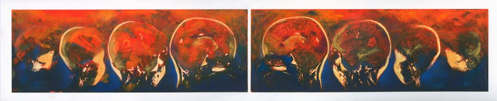 """""""Transformations and Turnarounds,""""sagittal views of the artist's brain."""