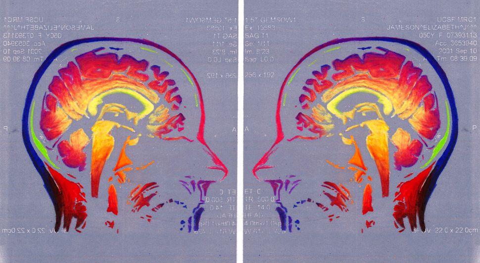 """Face Off,"" sagittal MRI views of the artist's brain."