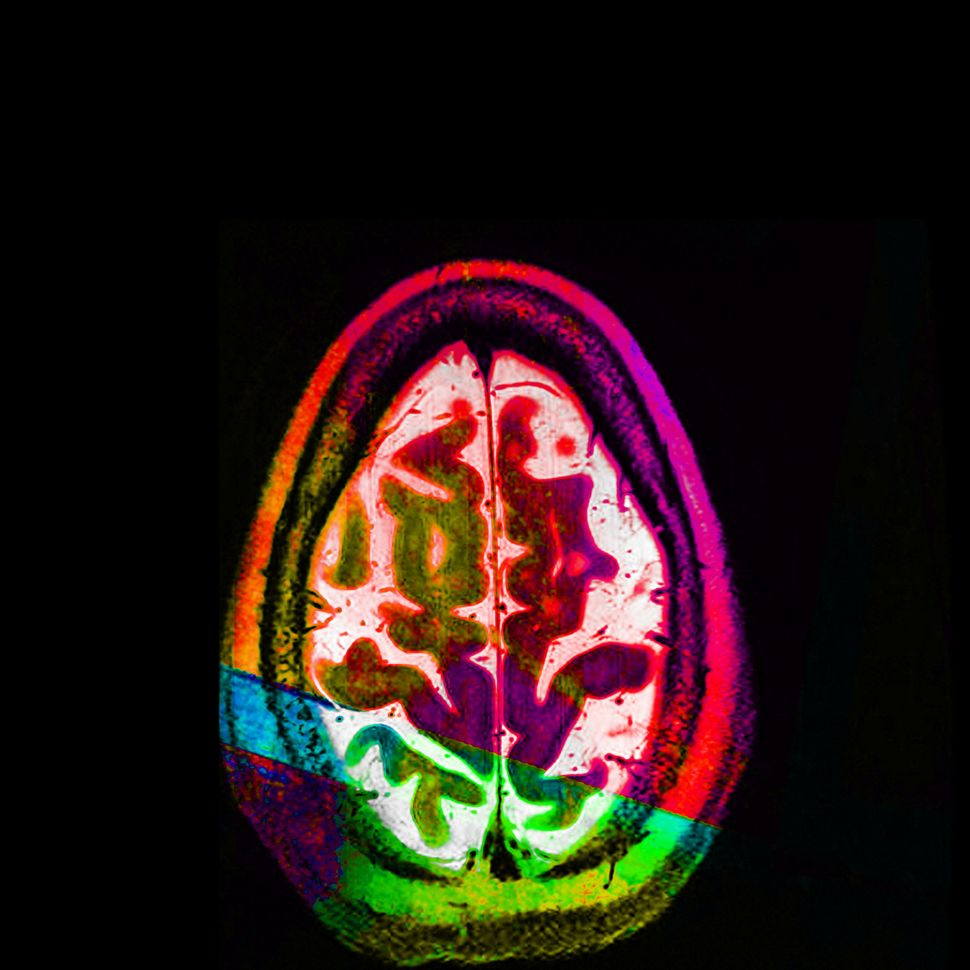 """Good Egg"" (or an axial MRI view of the artist's brain)."