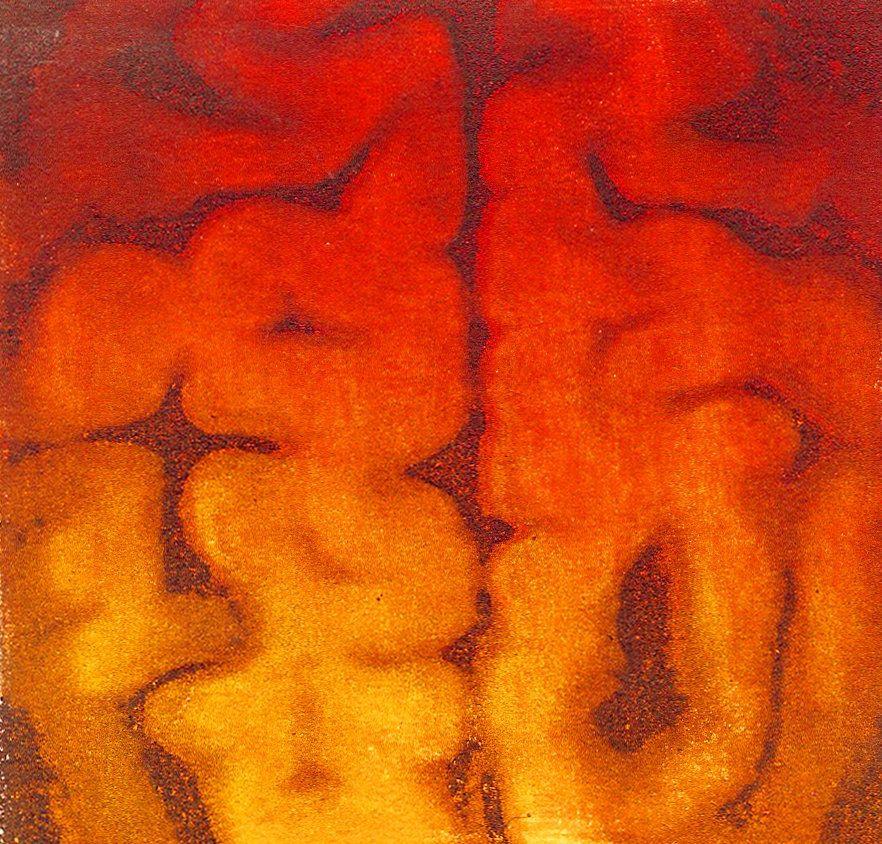 """Intrigue,""an axial MRI view of the artist's cerebellum."