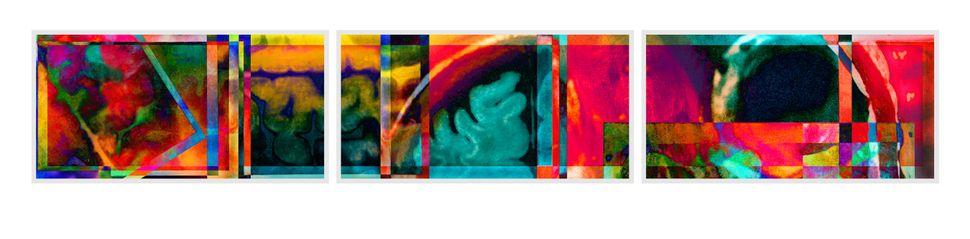 """Kaleidoscope,"" axial, coronal, and sagittal views of the artist's brain."
