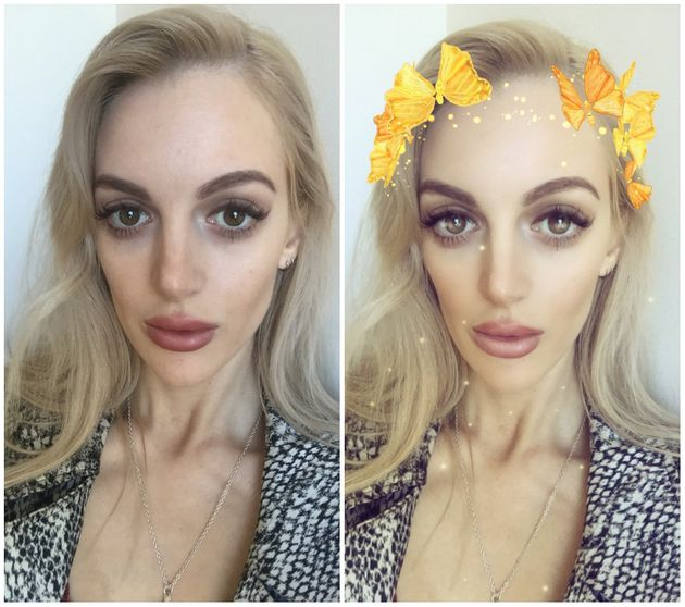 Snapchat Beauty Filters: From Plastic Surgery To Body Image, Here's The True