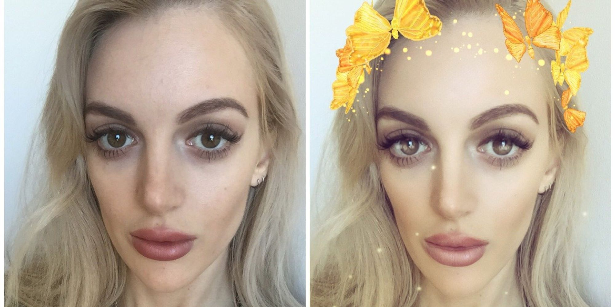 Snapchat Beauty Filters From Plastic Surgery To Body