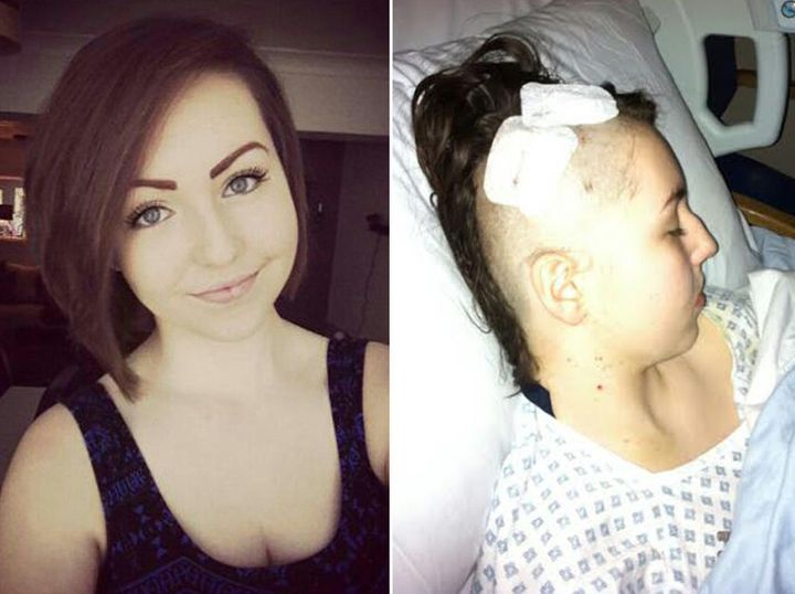 Amanda Day before her diagnosis and after having surgery to remove the tumour.