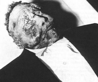 <i>Body of 14-year-old Emmett Till as it lay in the funeral home. Despite pleas from the funeral director, Mamie Till Bradley