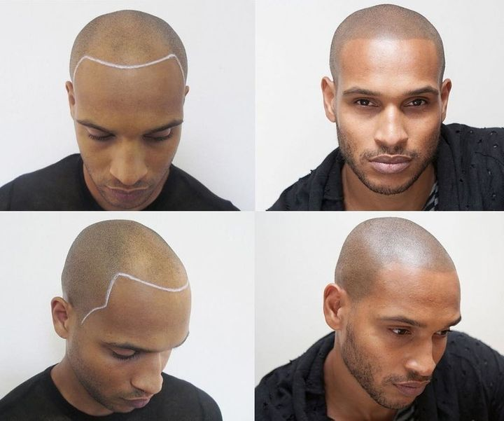 Guys are tattooing hair onto their bald heads huffpost for Head tattoo hairline