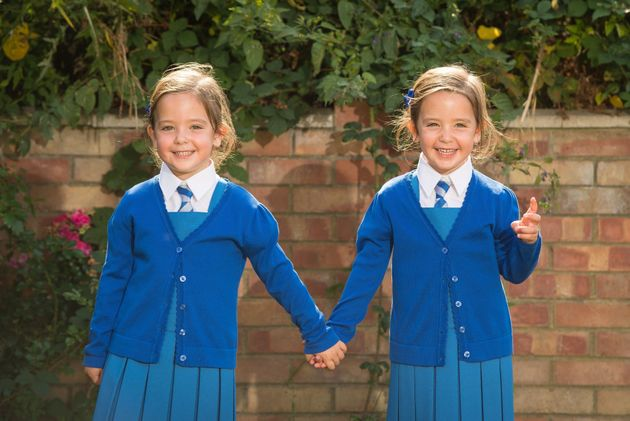 Separated conjoined twins 'really excited' to be starting school