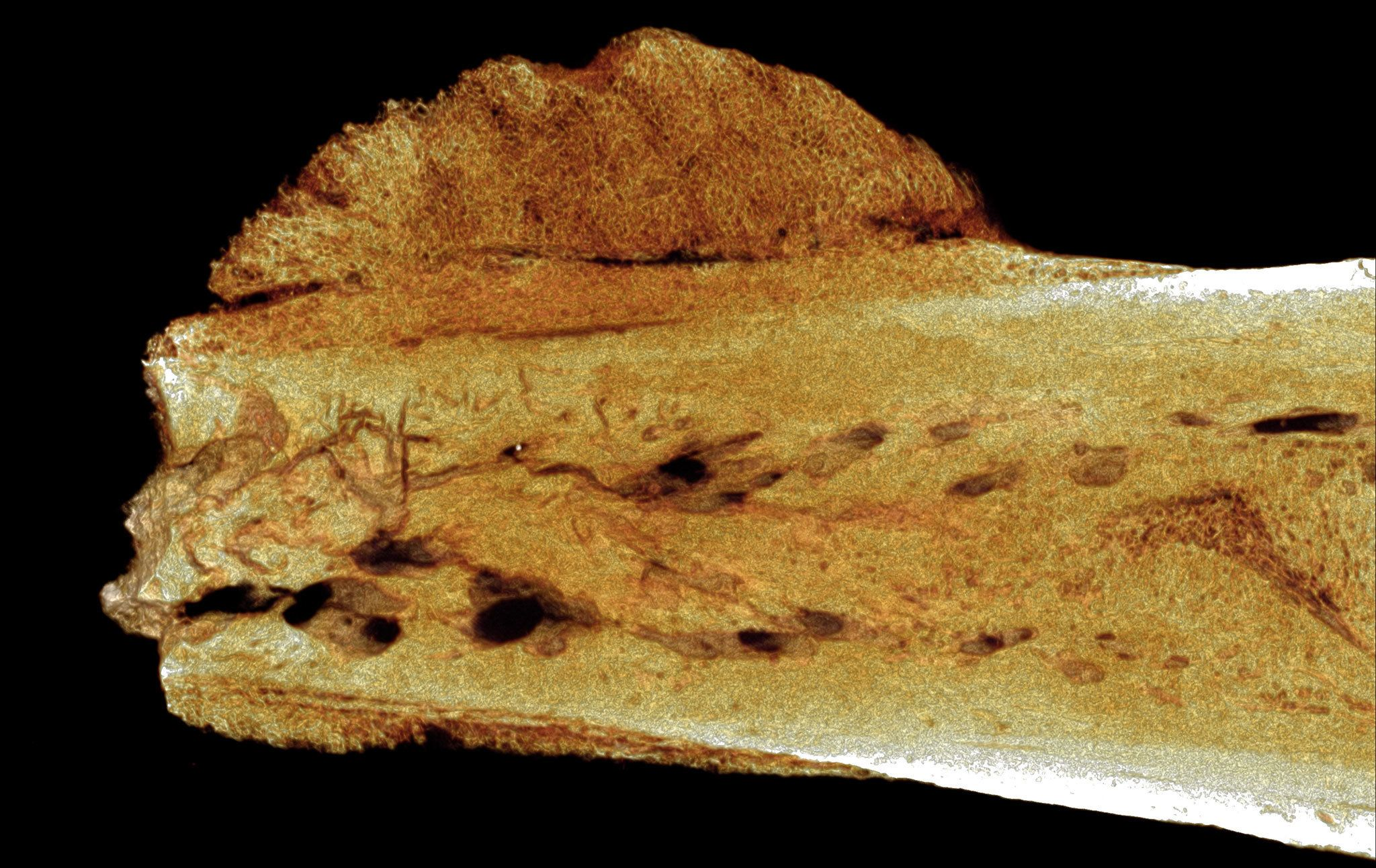 This micro-CT image shows a tumor in an ancient toe bone from a human relative.
