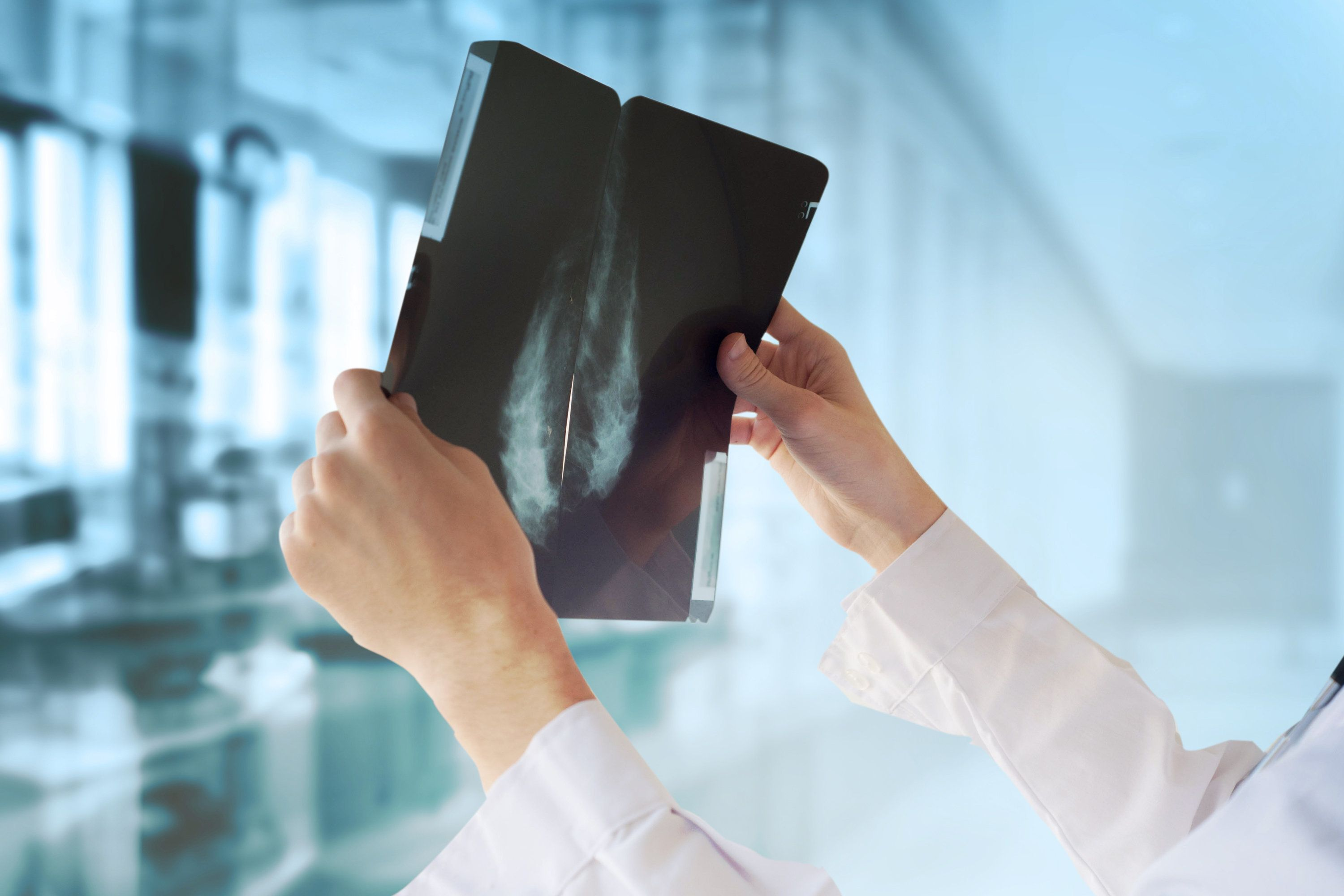 Artificial Intelligence Can Identify Breast Cancer Risk At 30 Times The Speed Of A