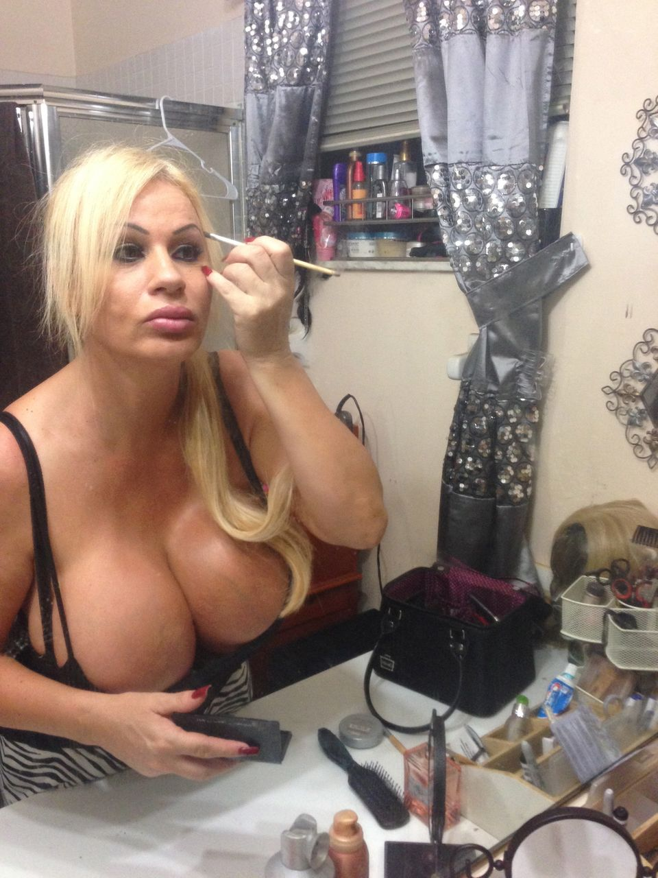 "Wildd's breast implants are so massive that she had to get an ""internal bra"" surgery to make sure her skin could contain them"