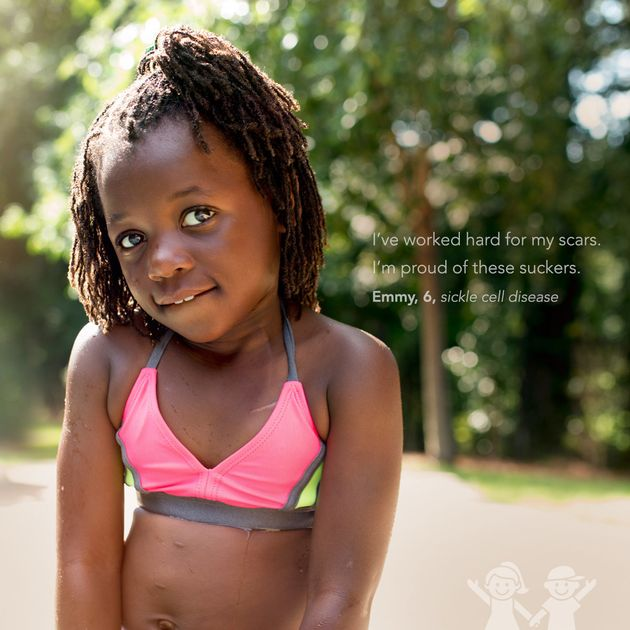 This photo series features 11 inspiring kids showing off their scars like badges of