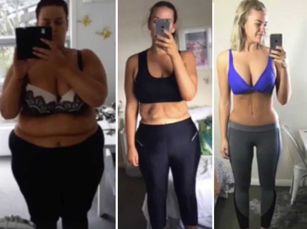 Fascinating Time-Lapse Video Shows Woman's 14 Stone Weight
