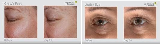 Regenica Revitalizing Eye Cream Before and After photos.