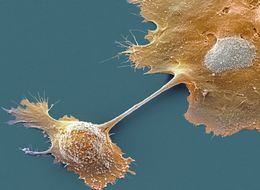 New Drug Increases Life Expectancy Of Pancreatic Cancer Patients