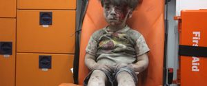 SYRIA ALEPPO AIR ATTACK AMBULANCE WOUNDED KID OMRA