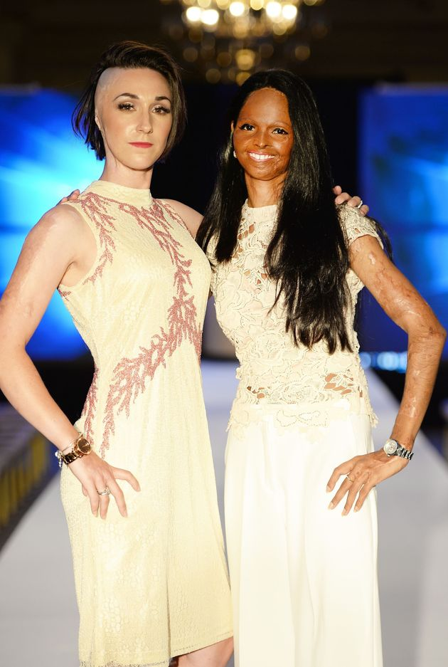 Acid Attack Survivors Walk The Runway In London For An Important