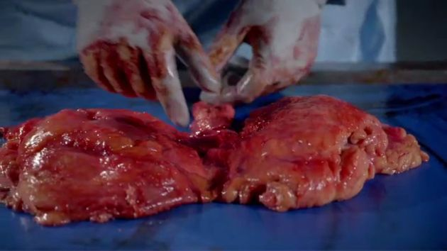 'Obesity: The Post Mortem': Graphic BBC3 Documentary Shows The Internal Impact Of