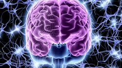 Brain Implants Could Help People With Paralysis Communicate With Just Their