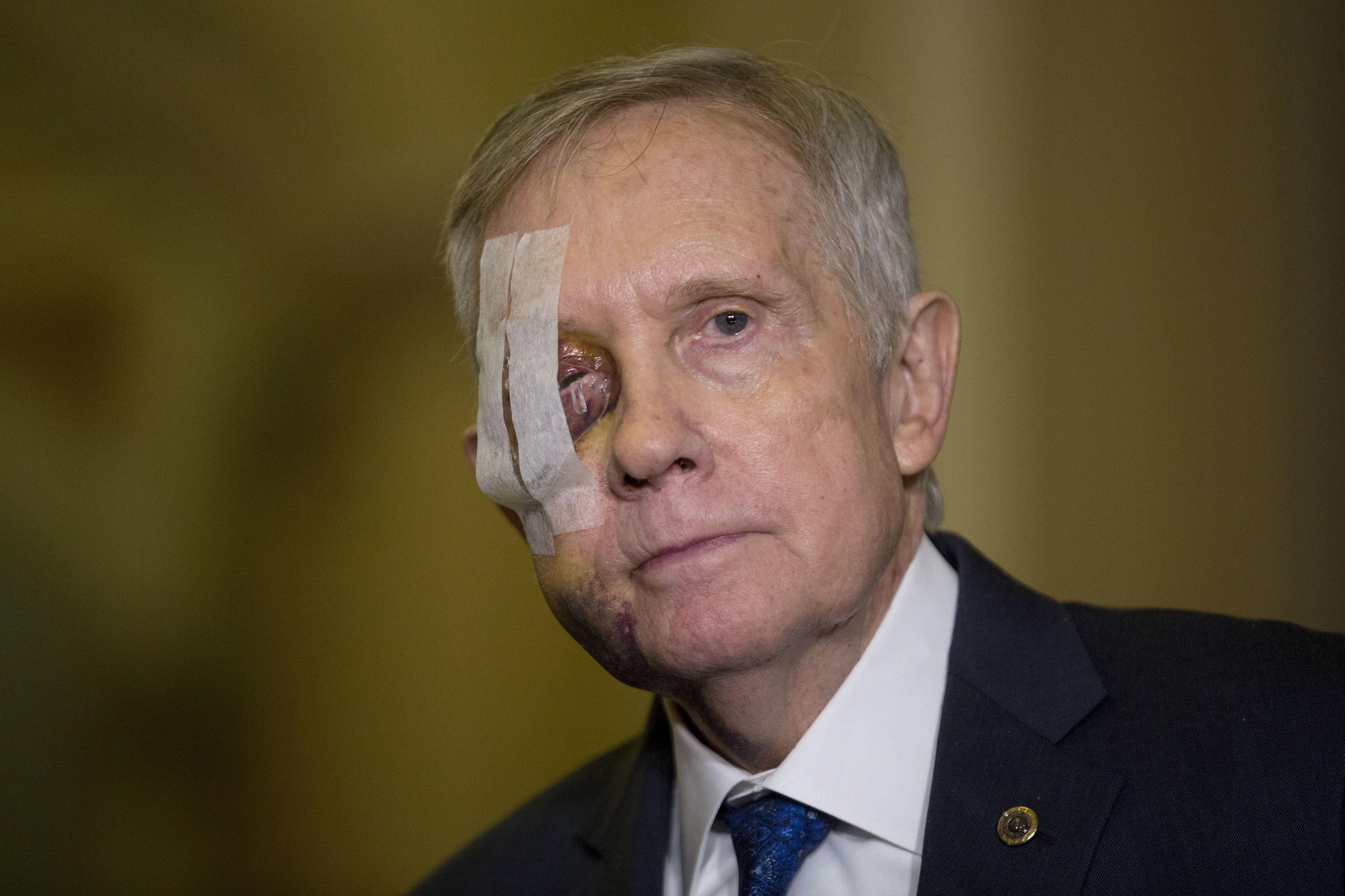 Senate Minority Leader Harry Reid (D-Nev.) injured his eye in an exercising accident.