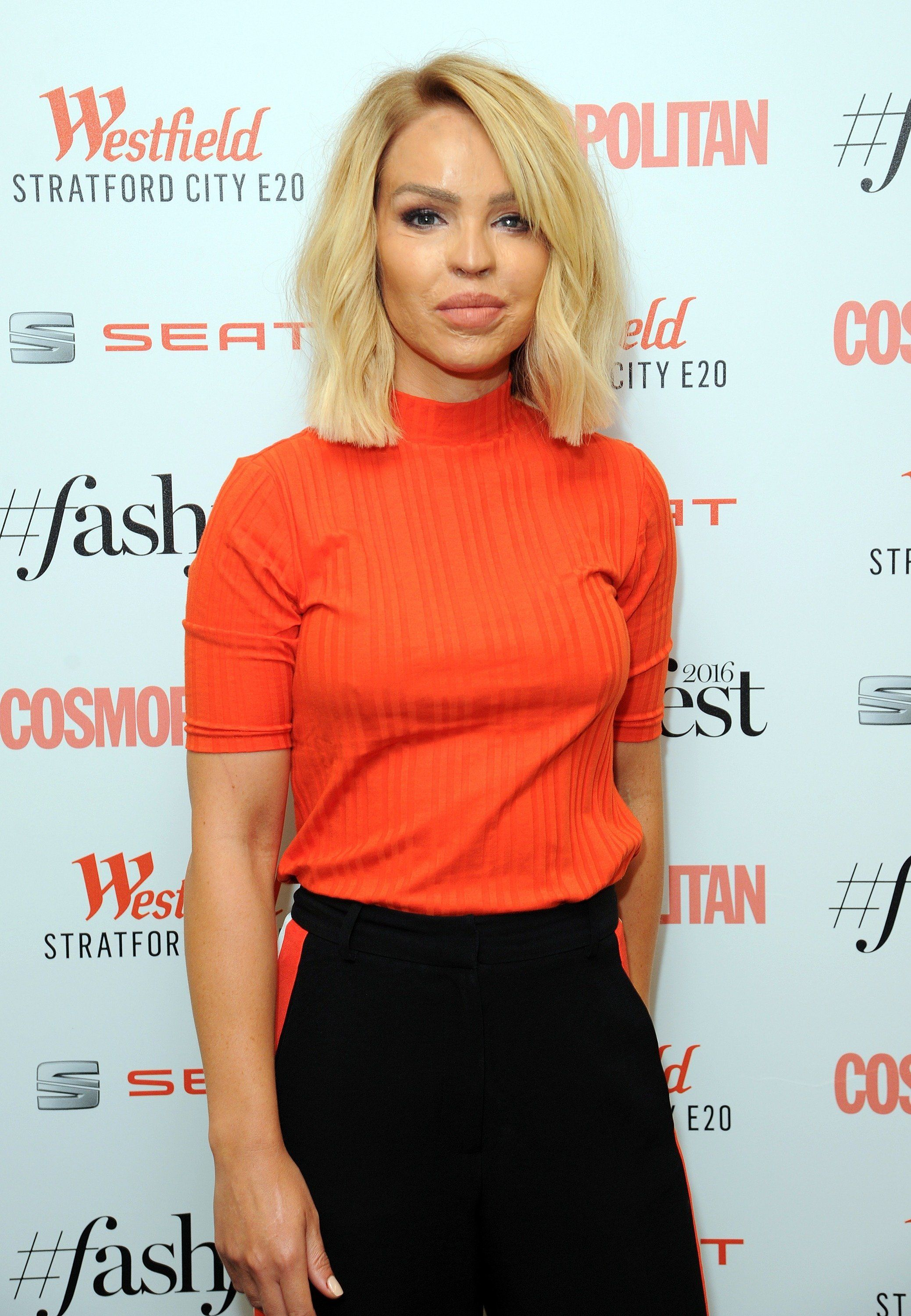Katie Piper Becomes Latest Star Rumoured For 'Bake Off' Presenting