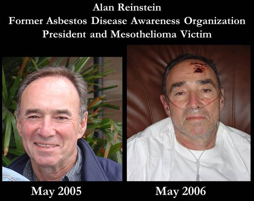 Mesothelioma victims often see their health decline rapidly, and seemingly out of nowhere.