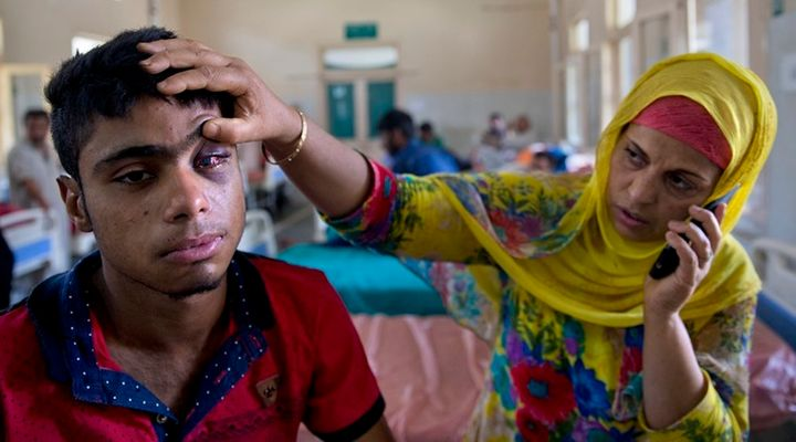 A local boy hit by pellets in his eye.