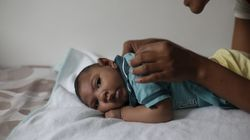 The Zika Virus Can Cause More Birth Defects Beyond