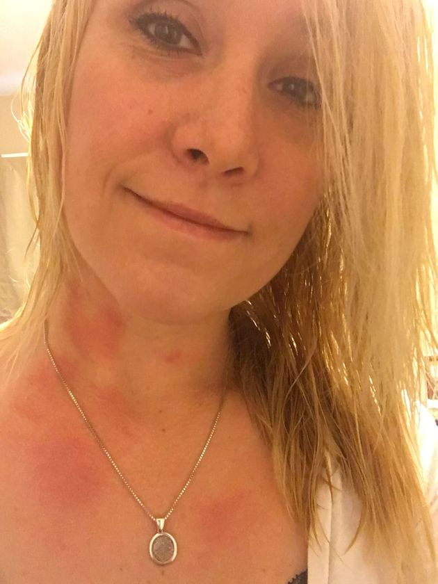 Woman S Allergy To Water Causes A Rash After She Showers