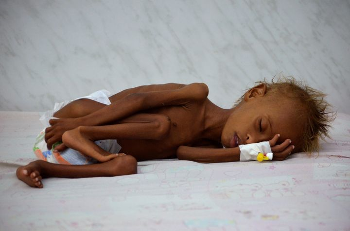 Salem Abduallah Musabih, 6, lies on a bed at a malnutrition intensive care unit at a hospital in the Red Sea port city of Hod