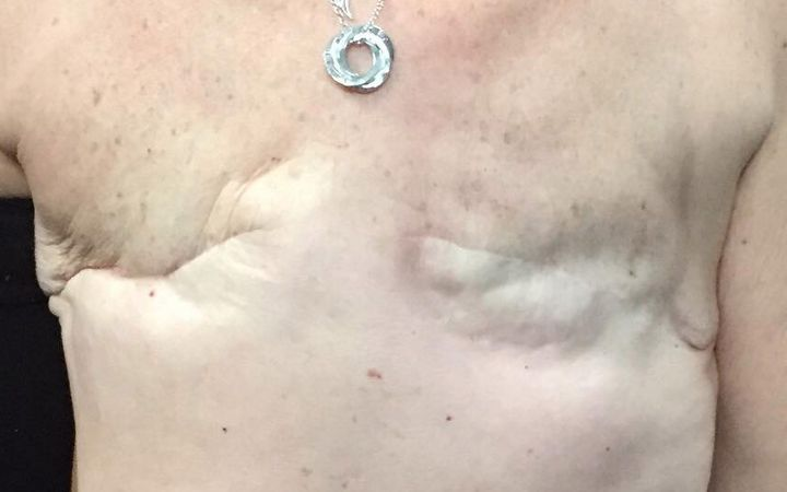 Sue Cook following her double mastectomy.