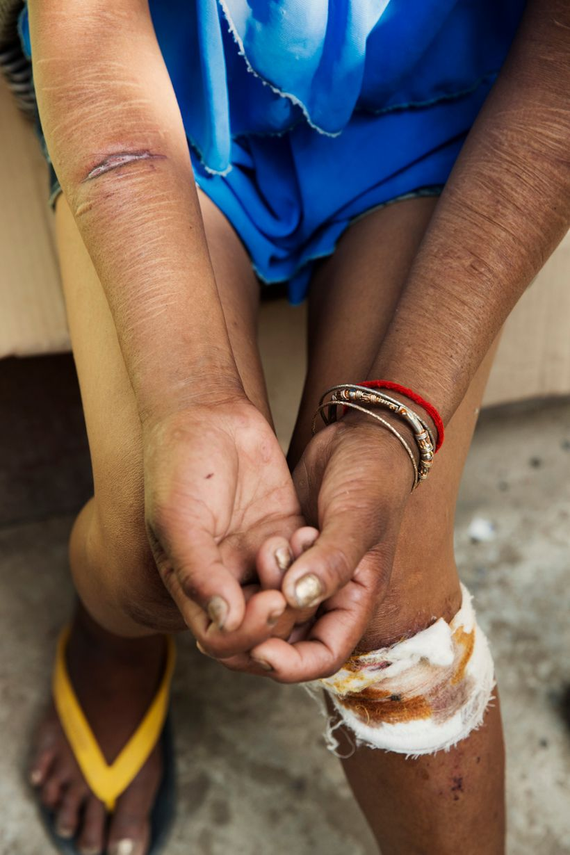 A woman shows us her scars from daily torture