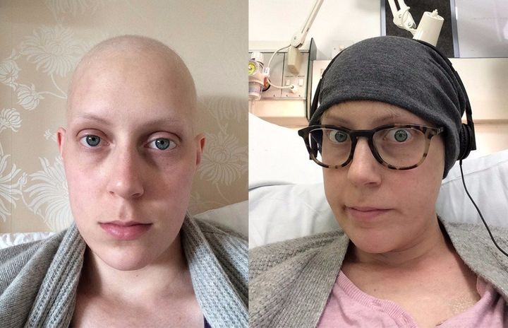 Emma during chemotherapy.