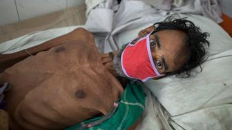DHAKA, BANGLADESH - 2016/03/24: KARTIK CHANDRA (55) is from Kurigram district, he has been suffering from TB for the last 9 months - he is being treated at the National Institute of Diseases of  the Chest and Hospital (NIDCH). He was photographed on World Tuberculosis Day, Thursday, March 24, 2016. Tuberculosis (TB) is a worldwide public health problem. The incident of TB is much higher in developing countries such as Bangladesh. The country ranks sixth among 22 highest burden TB countries in the world. The World Health Organization estimates that approximately 570000 people are currently suffering from TB disease in Bangladesh. Every year more than 300,000 people develop TB and 66,000 TB-related deaths occur in Bangladesh. (Photo by Probal Rashid/LightRocket via Getty Images)