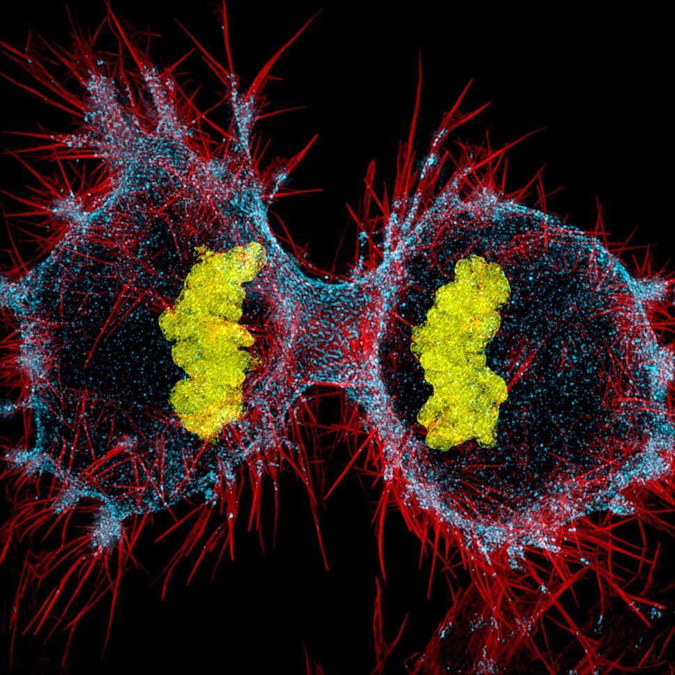 12th place: Dr. Dylan Burnette, Vanderbilt University School of Medicine, Nashville, Tennessee. Human HeLa cell undergoing ce