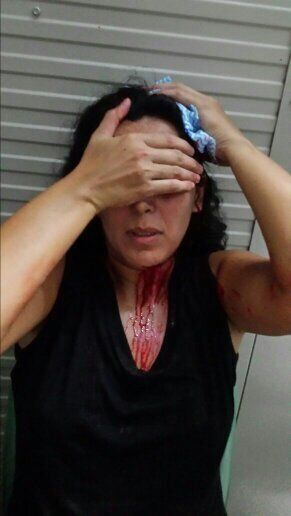 A refugee who was attacked by Nauruan locals.