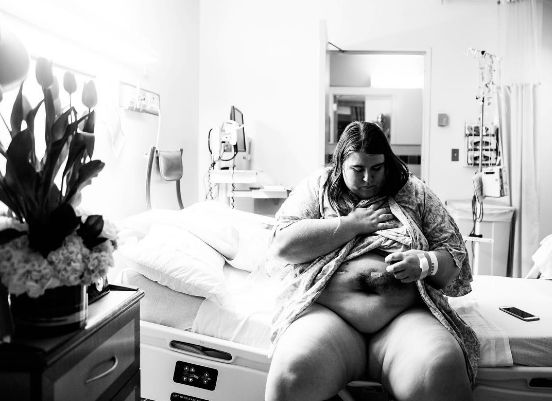 Woman Captures Her Extreme Weight Loss Journey In Raw Photo