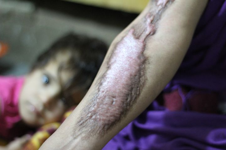 A woman shows her scars and burns months after she was scalded by a mustard agent that ISIS launched in the town of Taza
