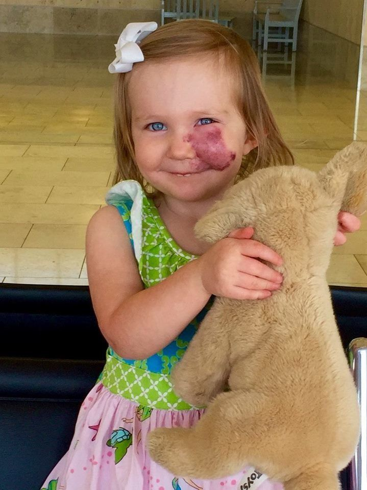 "<a href=""http://www.huffingtonpost.com/entry/port-wine-stain-birthmark-bullying_us_5807c4b3e4b0180a36e848fb"">Two-year-old Lyd"