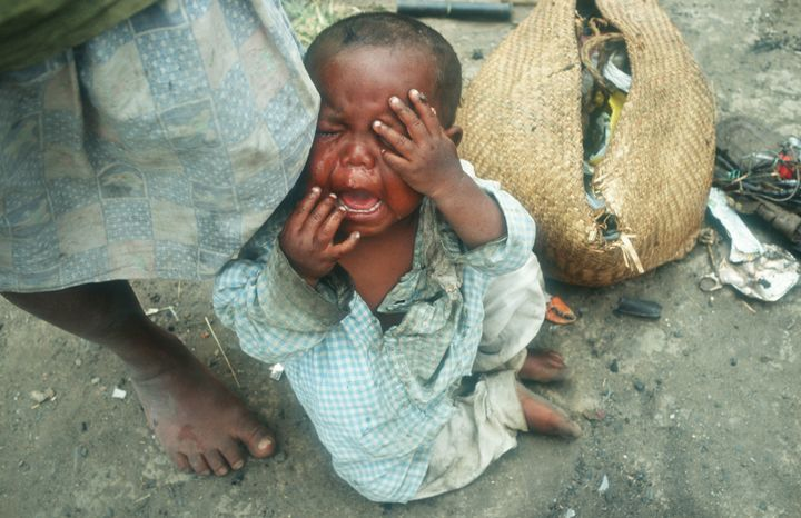 Madagascar has struggled with drought and malnutrition for years. Butclimate change has exacerbated extreme weather in