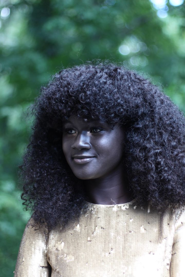 This Girl Was Bullied For Her Skin Color Now She S A