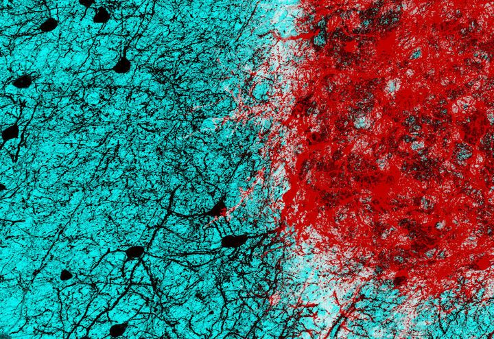 Embryonic neurons (shown in red) transplanted into the adult mouse brain connect with host neurons (shown in black), rebuildi