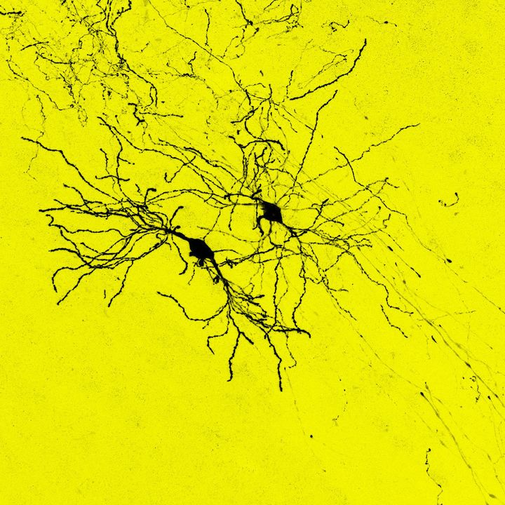Transplanted cells formed long-range connections with thalamic cells(shown in black).