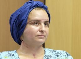 Face Transplant Recipient Looks Unrecognisable Two Years After Life-Changing Surgery