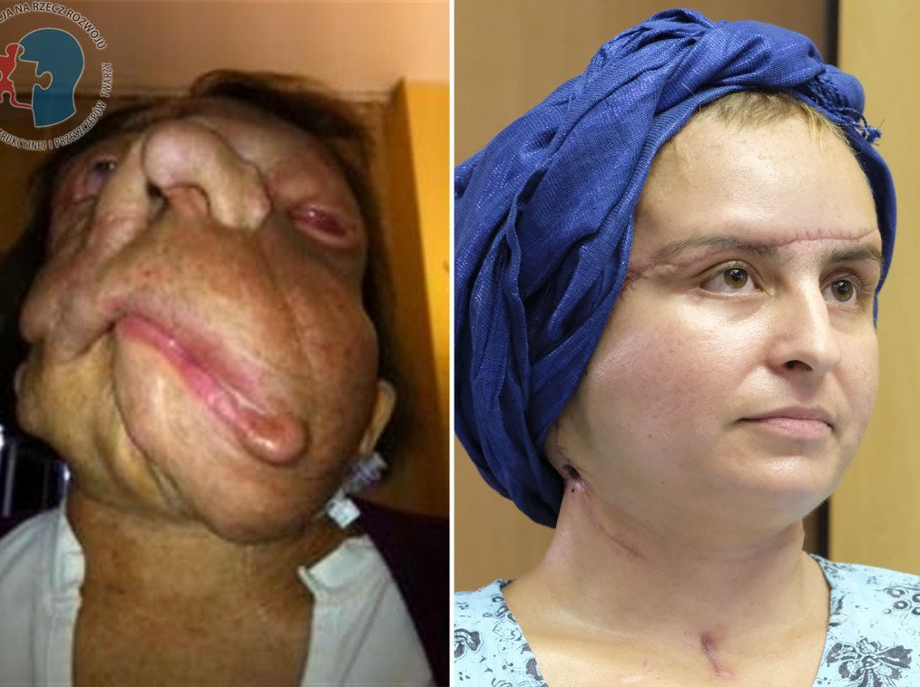 Face Transplant Recipient Looks Unrecognisable Two Years After Life-Changing