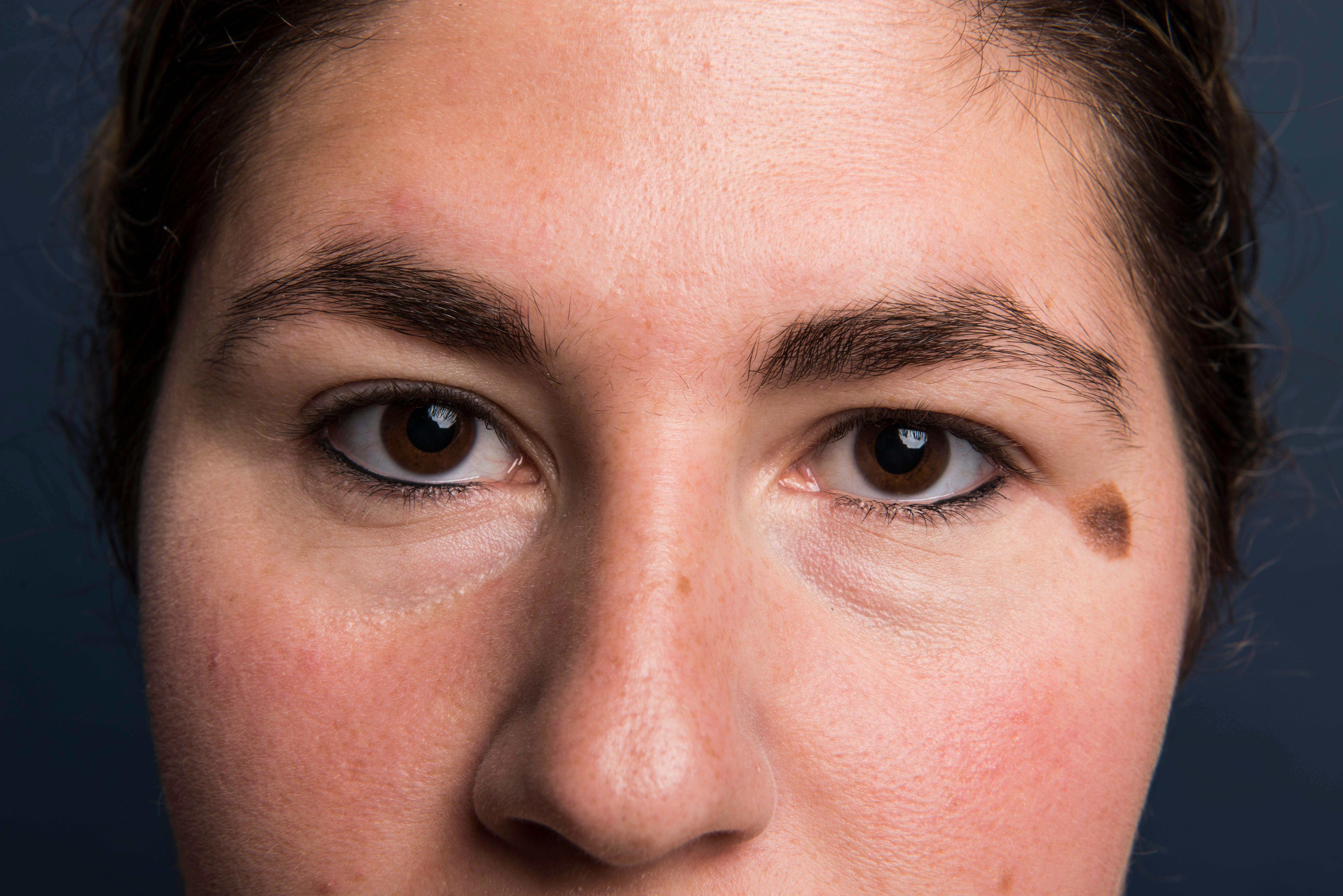 NEW YORK, NY - AUGUST 17: Jamie Feldman poses for a portrait with untouched eyebrows before and eyebrow experiment in New York on Wednesday, Aug. 17, 2016. (Photo by Damon Dahlen, Huffington Post) *** Local Caption ***